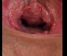 Gaping vagina